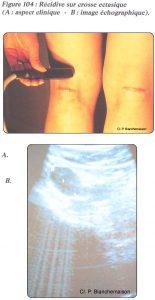 Figure 104: Récidive sur crosse ectasique (A: aspect clinique - B : image échographique).