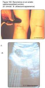 Figure 104. Recurrence on an ectatic saphenopopliteal junction (A: clinical appearance; B: ultrasound appearance).