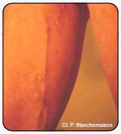 Figure 35 : Veines périnéales et tronc saphène interne chez un sportif