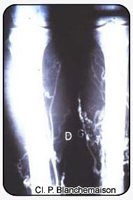 Figure 4 : Lower limb perforators shown by selective varicography with tourniquets.