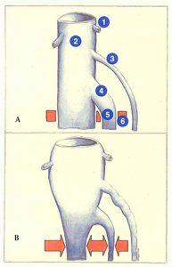 Figure 75. Conséquences de la dilatation des veines jumelles sur la veine poplitée.