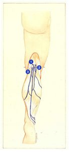 Figure 77. Classical anatomical position of the saphenopopliteal junction. Associated reflux in the popliteal fossa.