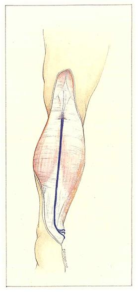 Short saphenous vein - Phlebologia