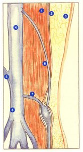Figure 94. Suprapopliteal perforating vein.