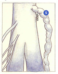 Figure 102C