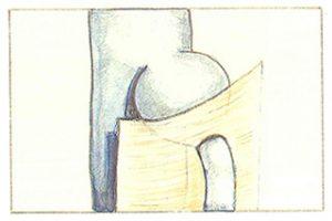 Figure 103: Ectasie sous-aponévrotique de la crosse saphène externe.