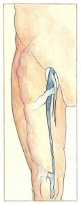 Figure 29. Hypotrophy of the femoral vein and its anatomical consequences.