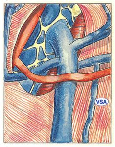 Figure 34: Accessory saphenous vein (ASV).  Anastomosis into a tributary of the arch of the long saphenous vein.