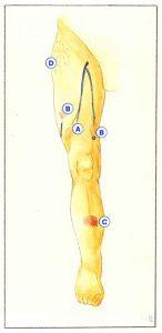 Figure 45: Genèse des varicosités intradermiques (A à D : voir texte).