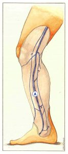 Figure 63: Perforating veins anastomosing with an anterior or posterior accessory saphenous vein in the leg.